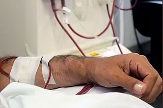 Novo protocolo canadense sugere que nefrologistas podem esperar mais tempo para iniciar a diálise em alguns pacientes com doença renal crônica